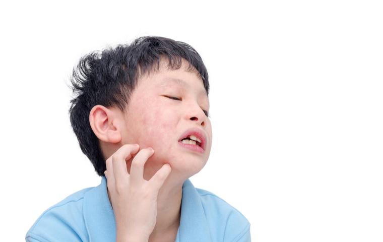 アレルギー少年